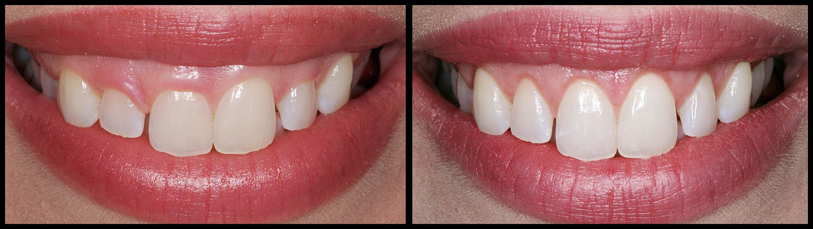 Gum Lift - Before and After bunker hill dentistry
