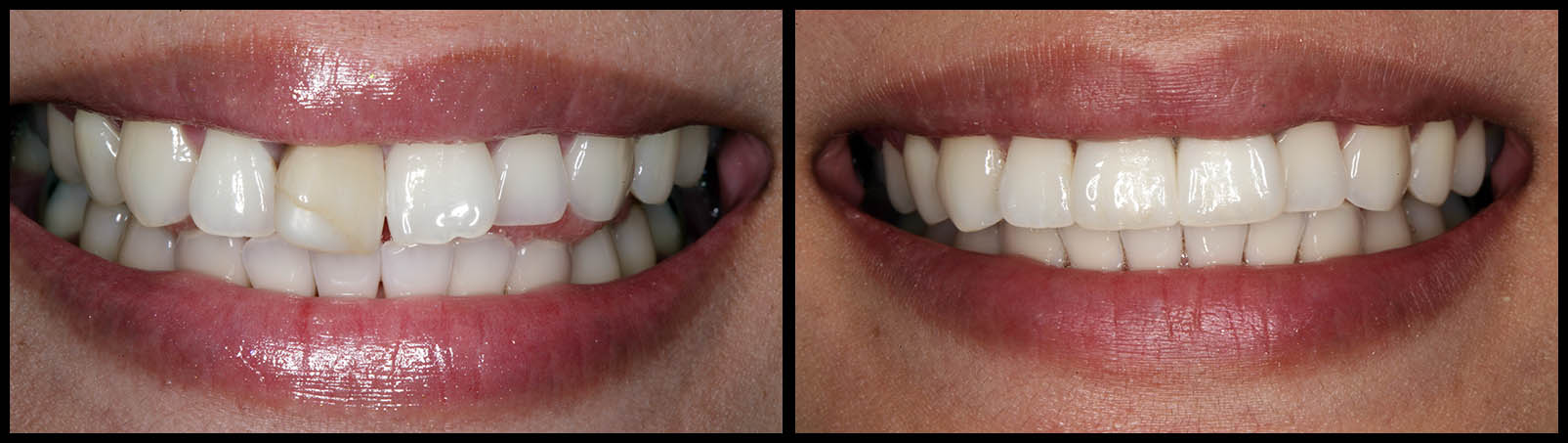 Dental Implants And Crowns   Cosmetic Dentistry Before And After   Bunker Hill Dentistry   Houston, TX