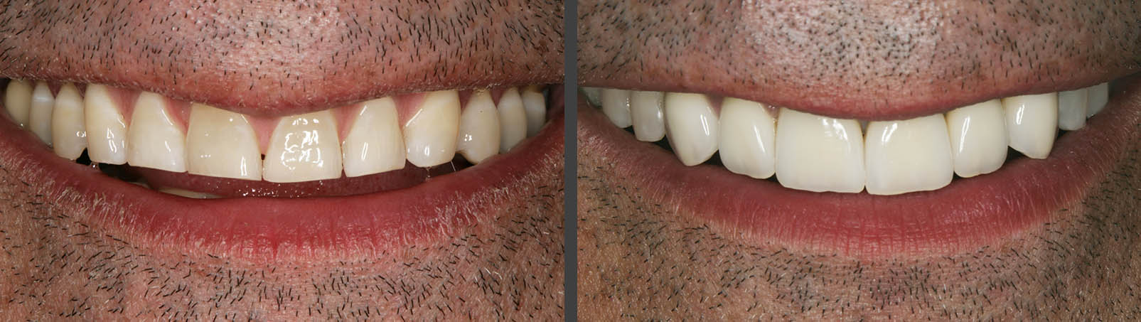 Veneers | Cosmetic Dentistry Before And After | Bunker Hill Dentistry | Houston,, TX
