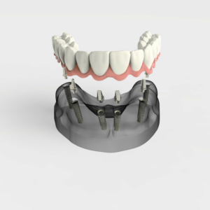 all on 4 implants bunker hill dentistry