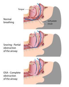 Sleep Apnea Diagram