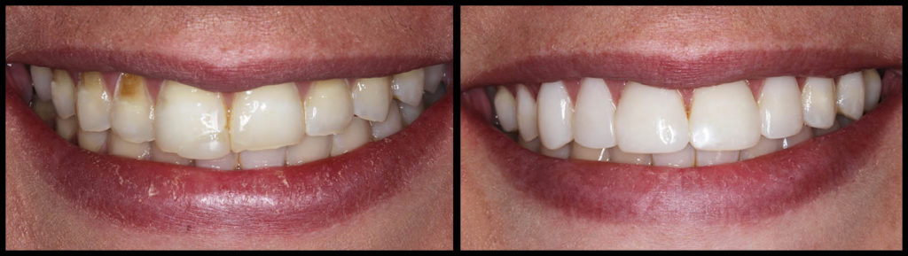 Dental Bonding - Before and After Bunker Hill Dentistry