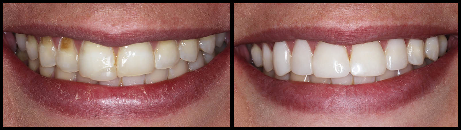 Dental Bonding - Before and After Bunker Hill Dentistry