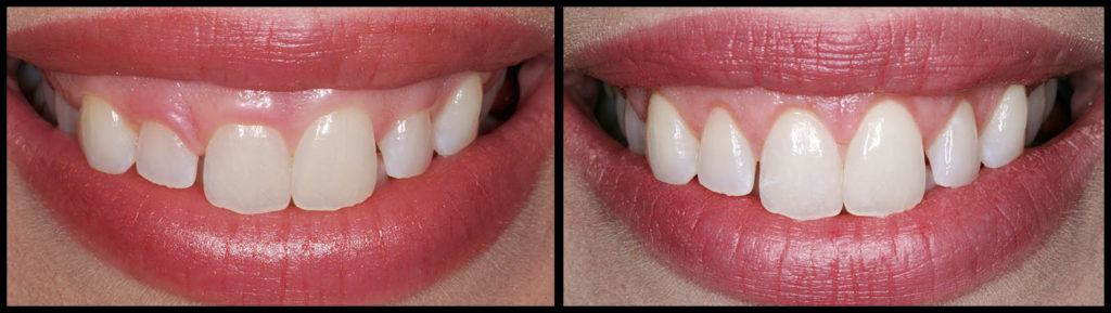 Gum Lift - Before and After at Bunker Hill Dentistry