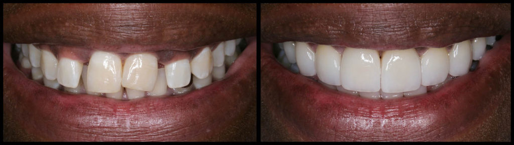 Dental veneers to correct spacing issue