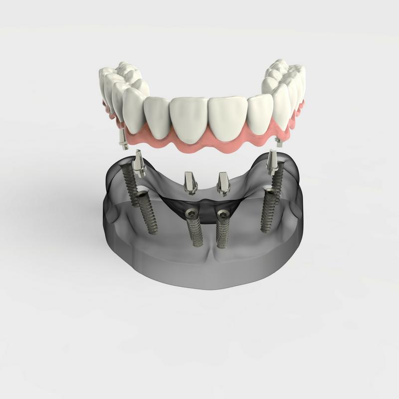 all on 4 implants bunker hill dentistry houston