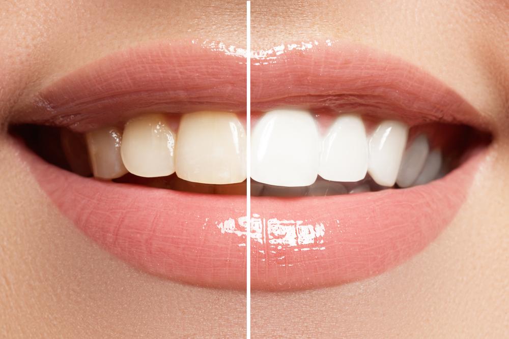 Teeth Whitening Bleaching Houston Tx Fast Affordable Solution