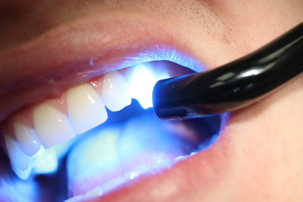 Dental composite applied to teeth