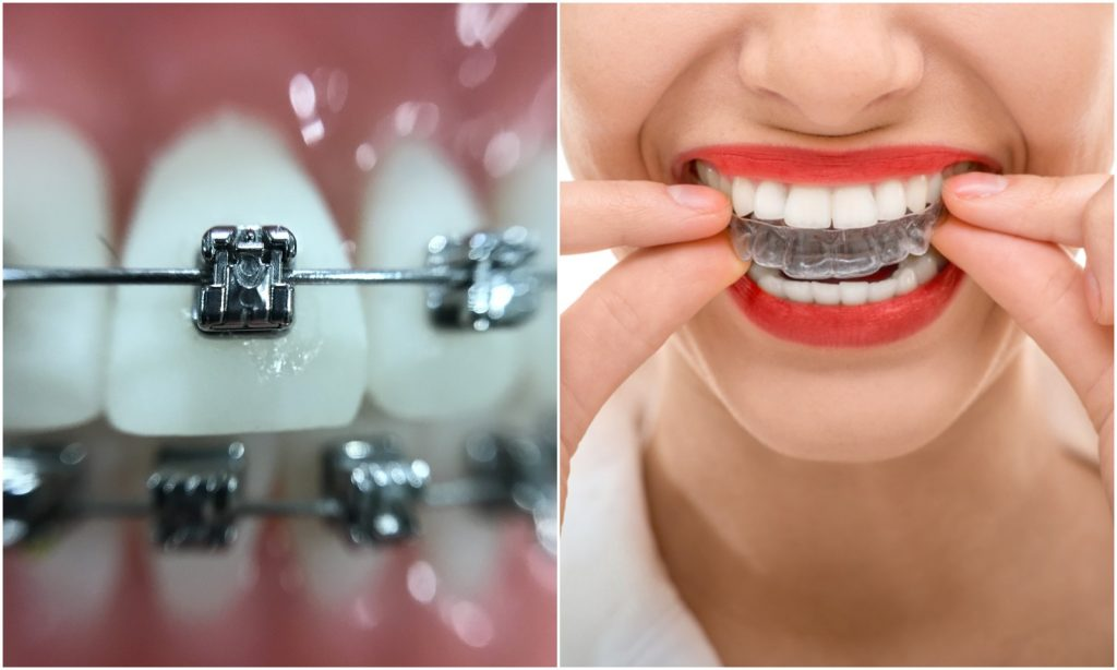 Can You Whiten Teeth With Braces Or Invisalign