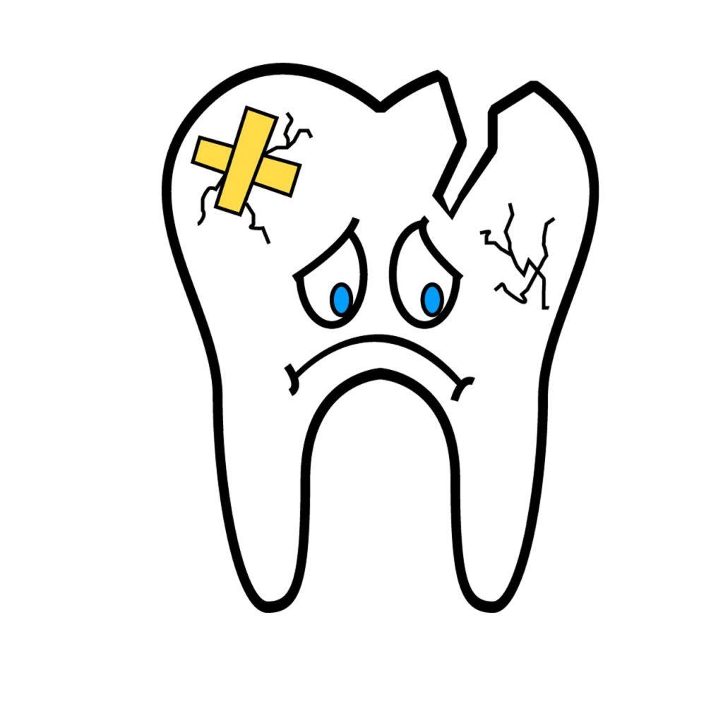 Broken tooth.