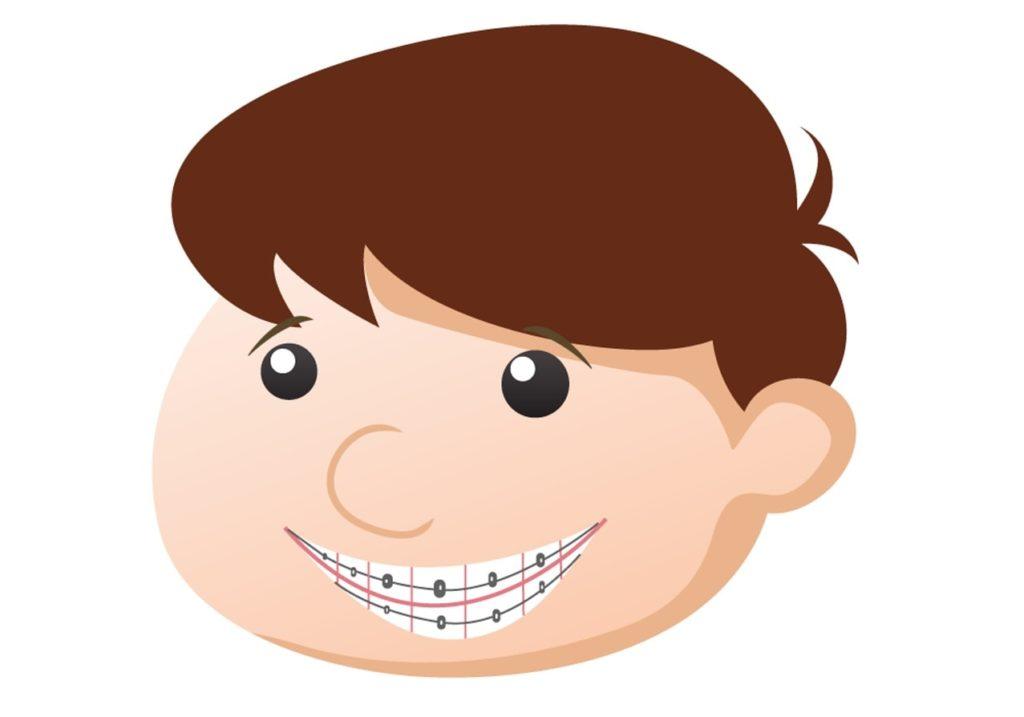 Child wearing braces