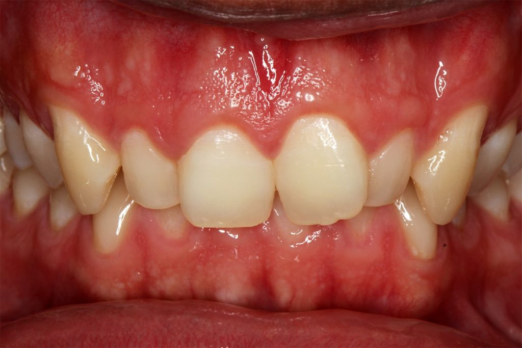 Overbite example of crooked teeth
