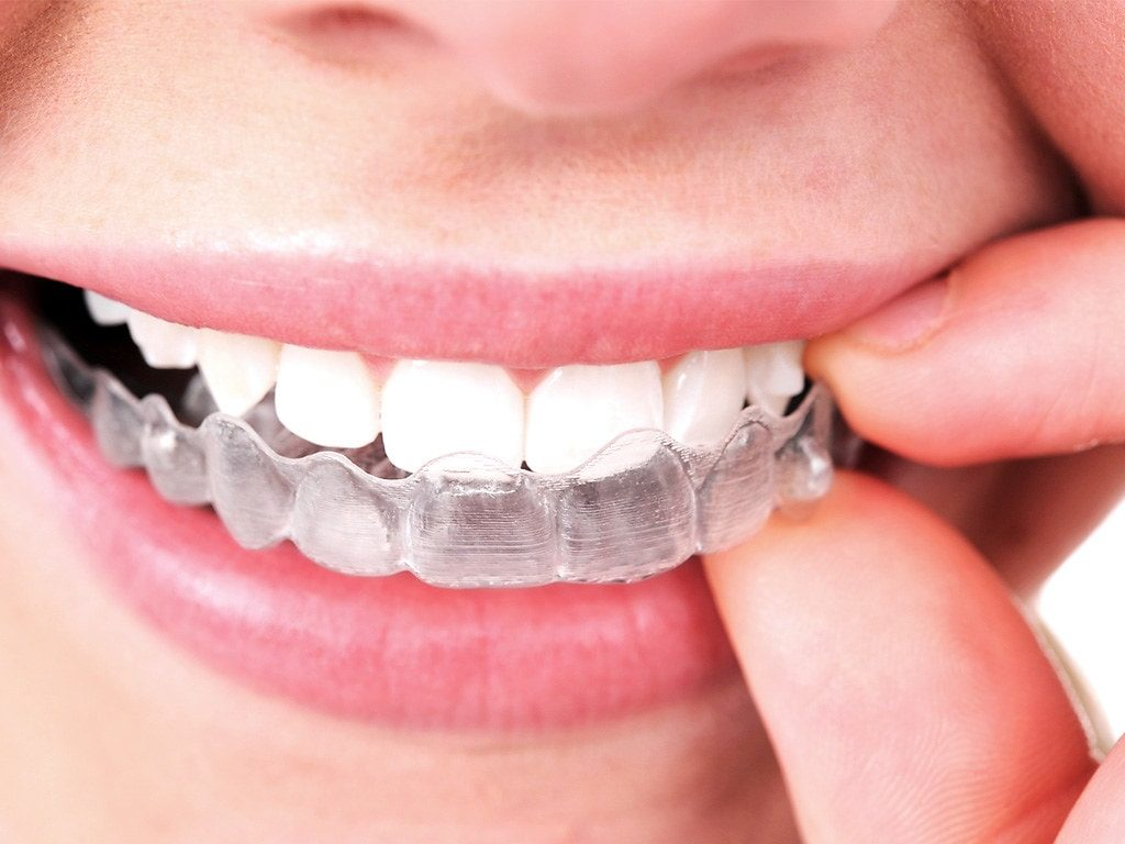 Clear Invisalign tray over teeth