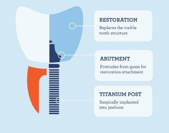 Components of a dental implant - restoration crown, abutment, and titanium post