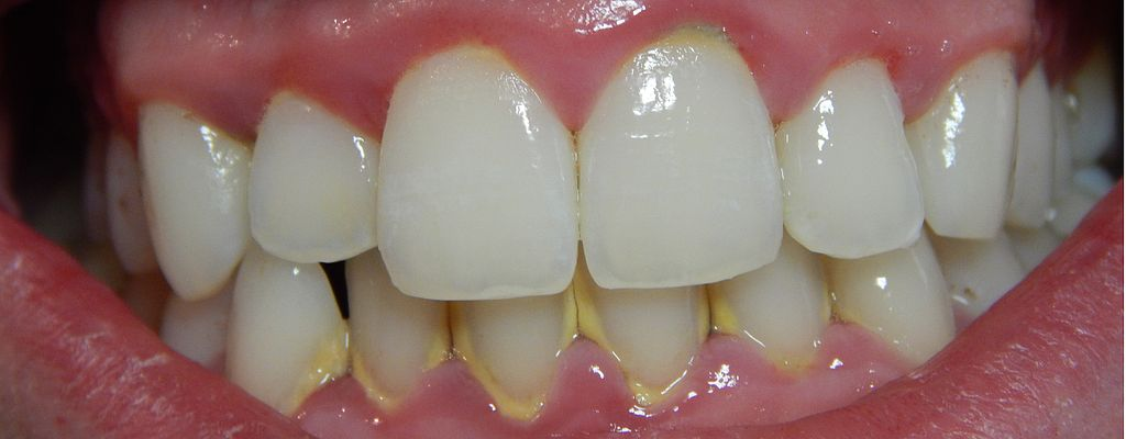 Visible signs of gingivitis, including plaque and red gums