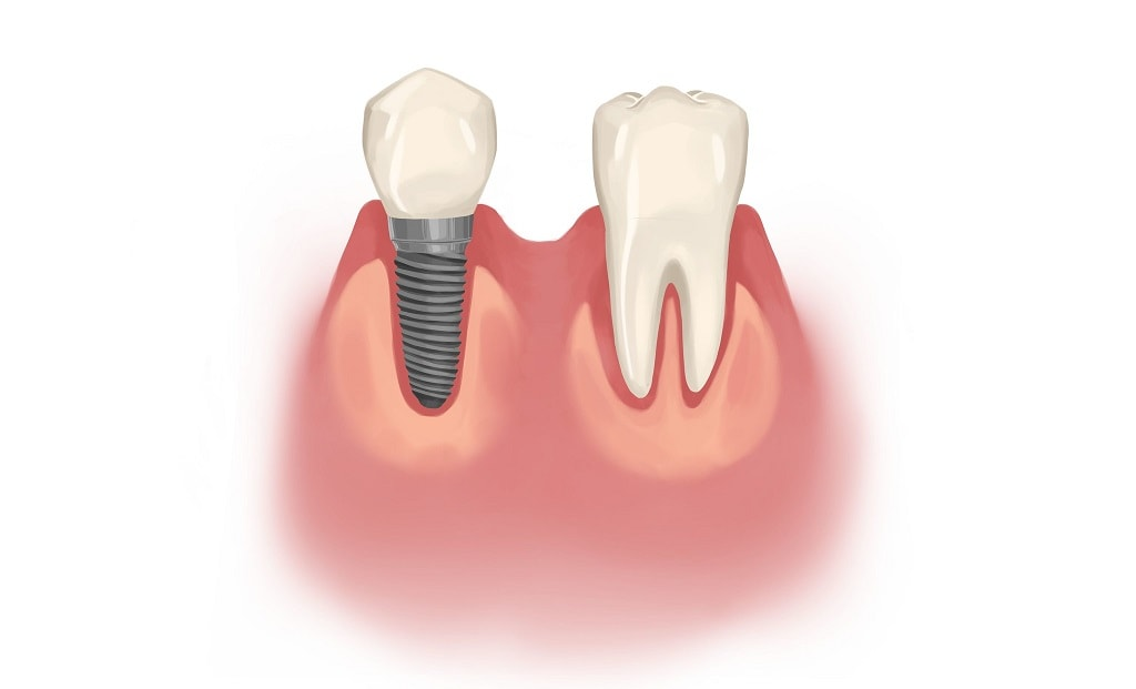 A single dental implant beside healthy tooth