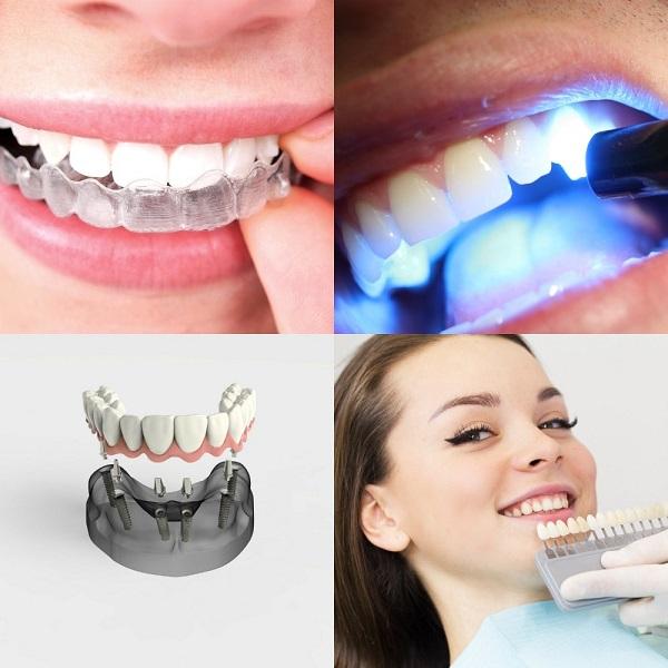Invisalign aligners, dental bonding application, implants model, showing veneers to patient