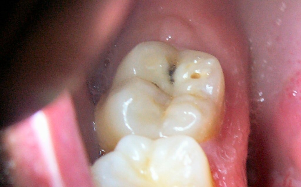 Tooth cavity on back molar