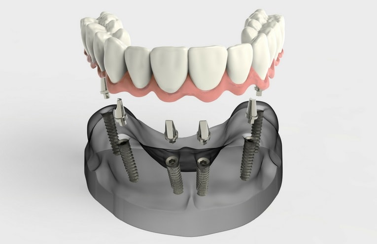 All-on-4 dental implants being inserted into lower arch