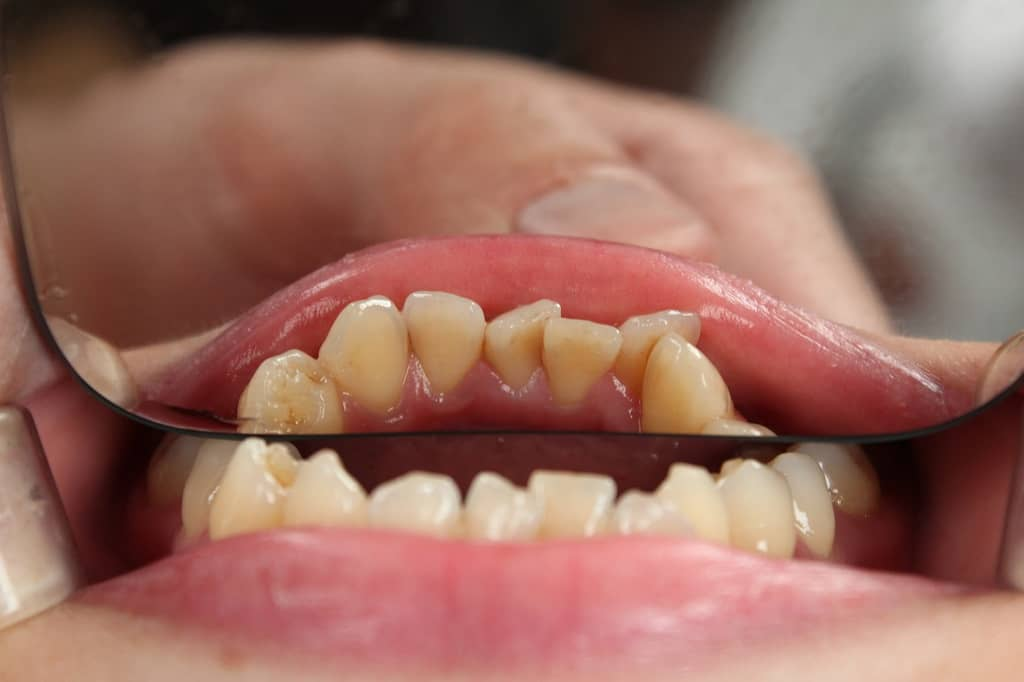 Crooked teeth reflected in dentist's mirror